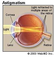 Astigmatism and Amblyopia သူငယ္အိမ္ေစာင္းျခင္း နဲ႔ ပ်င္းတဲ့မ်က္စိ