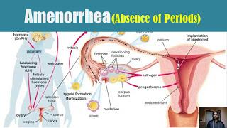 Amenorrhea ရာသီမလာျခင္း