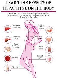 Hepatitis C အသည္းေရာင္ (စီ) ပိုး