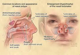 Nasal Polyps ႏွာေခါင္းထဲ အသားပိုျဖစ္ျခင္း