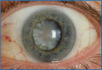 Cataract မ်က္စိတိမ္