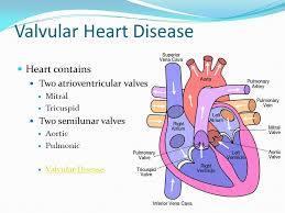 Valvular Heart Diseases ႏွလံုးအဆို႔ရွင္ေရာဂါမ်ား