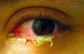 Infective conjunctivitis မ်က္စိက်ိန္းျခင္း