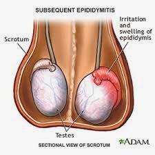 Epididymitis and Orchitis က်ား အေစ့-အေၾကာေရာင္ျခင္း