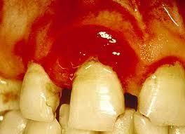 Bleeding gums သွားဖုံးသွေးယိုခြင်း