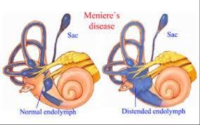 Meniere's disease အမူးရောဂါ