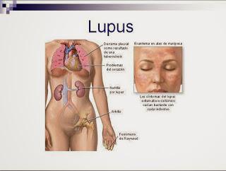 SLE ထူးခြားတဲ့ရောဂါ